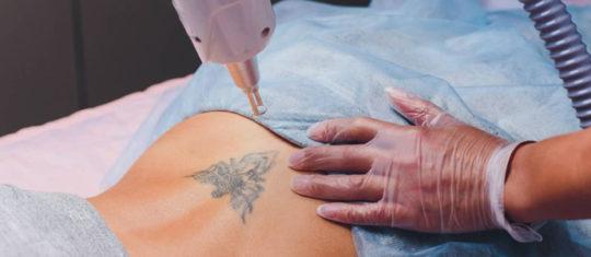 enlever le tatouage